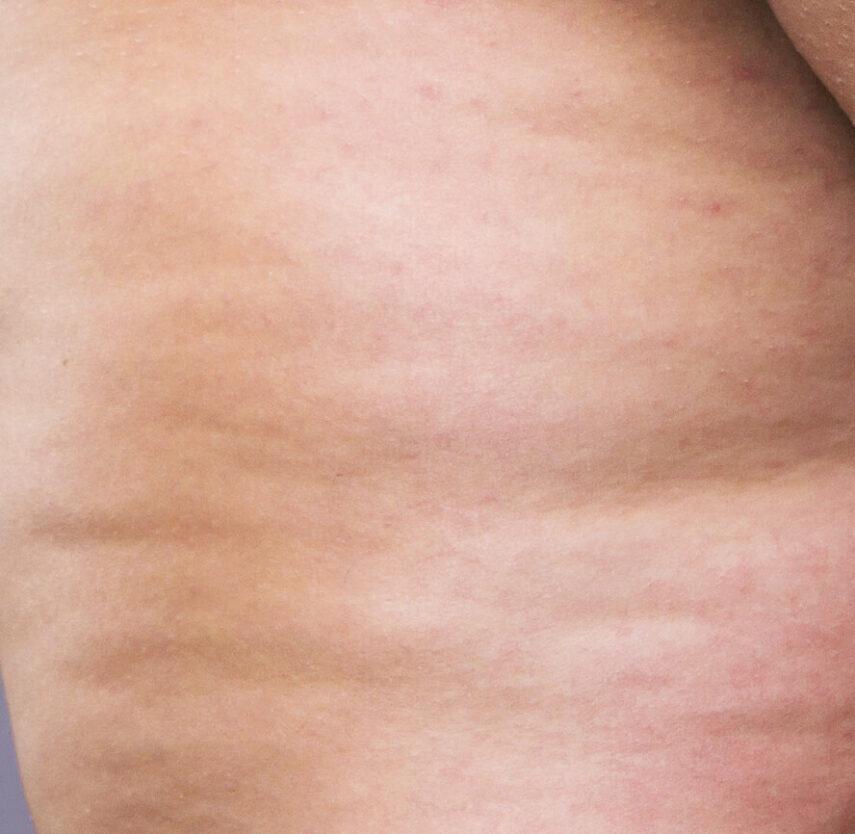 stade 3 cellulite