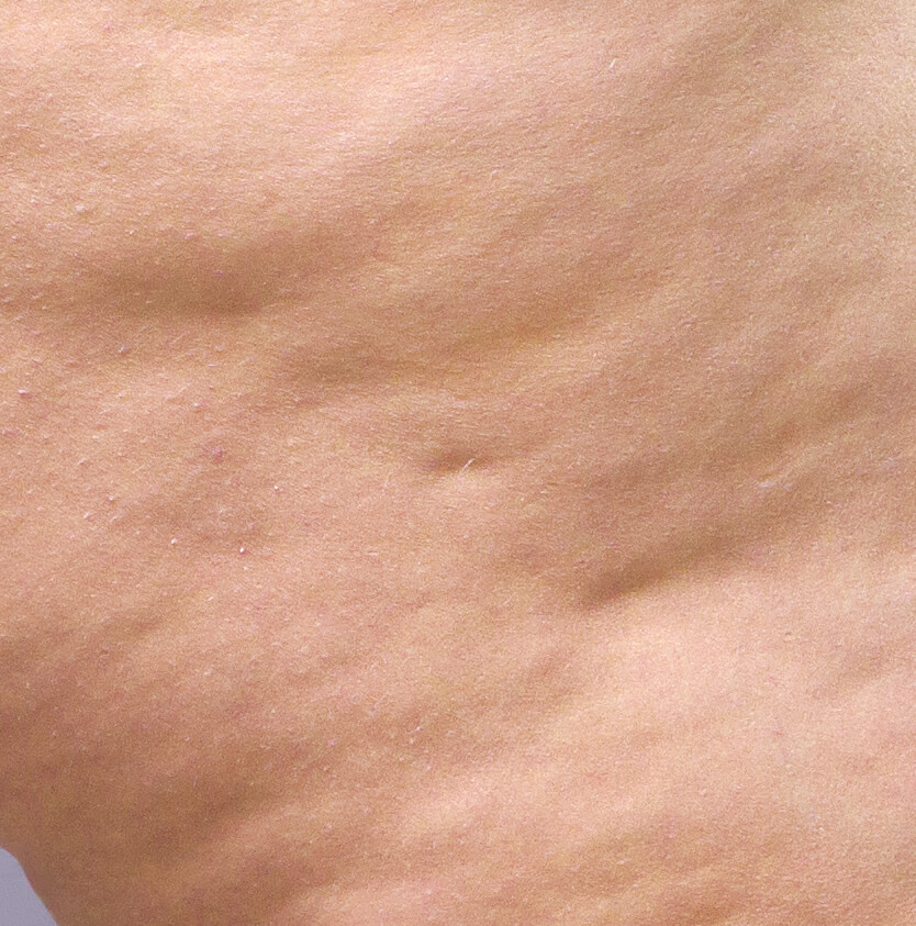 stade 4 cellulite