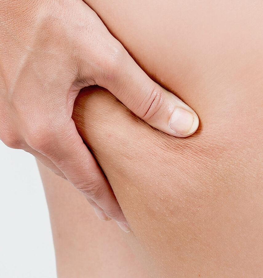 stade 1 cellulite