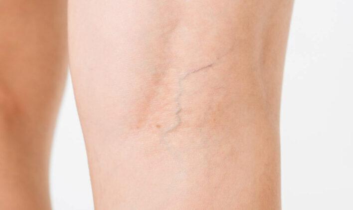 Varices sur les jambes