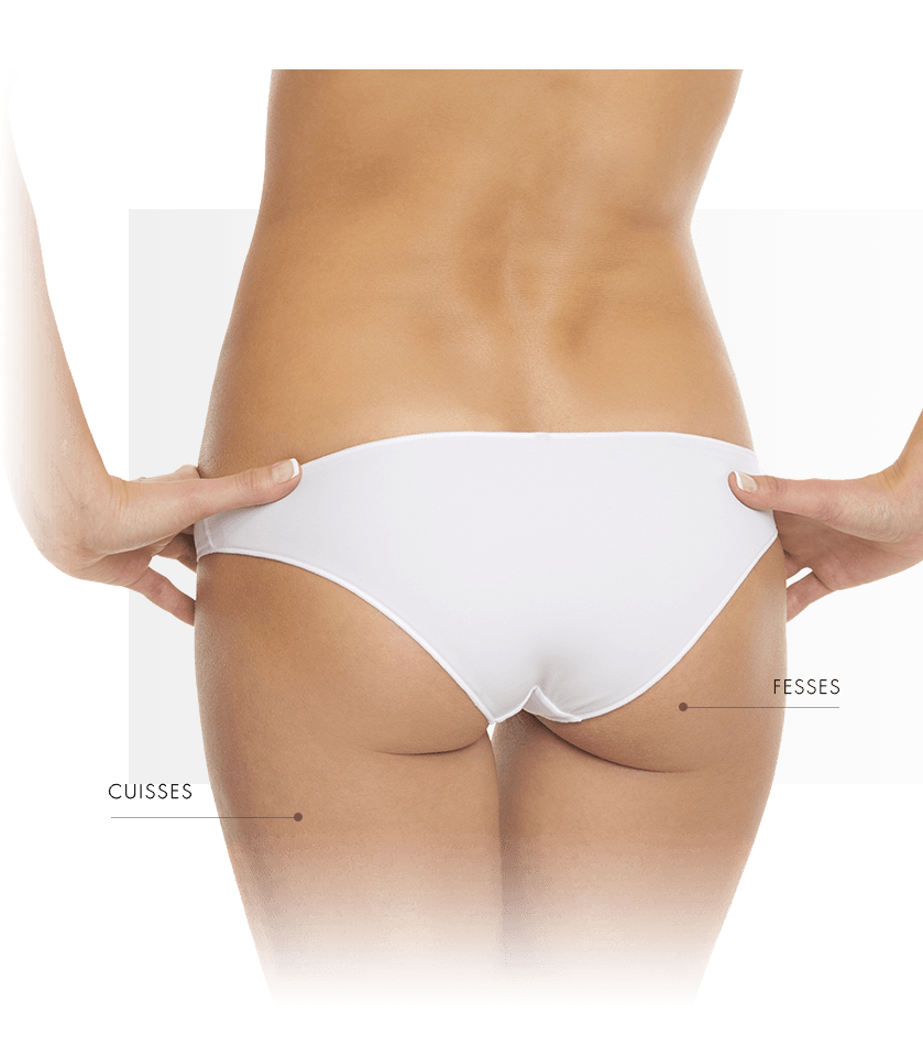 thermage femme zone bas du corp 2