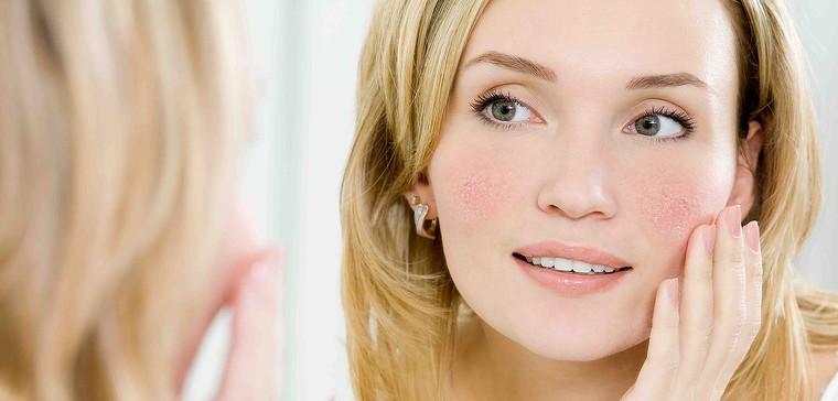 Laser removal of redness