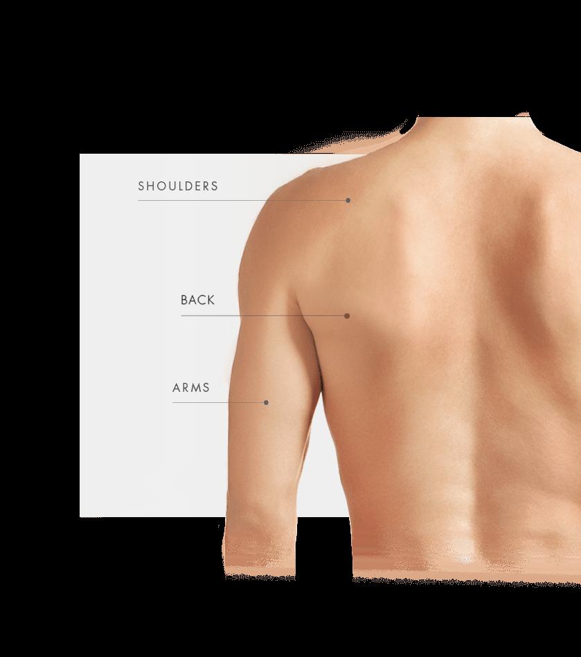Tattoo Removal Laser zone men back