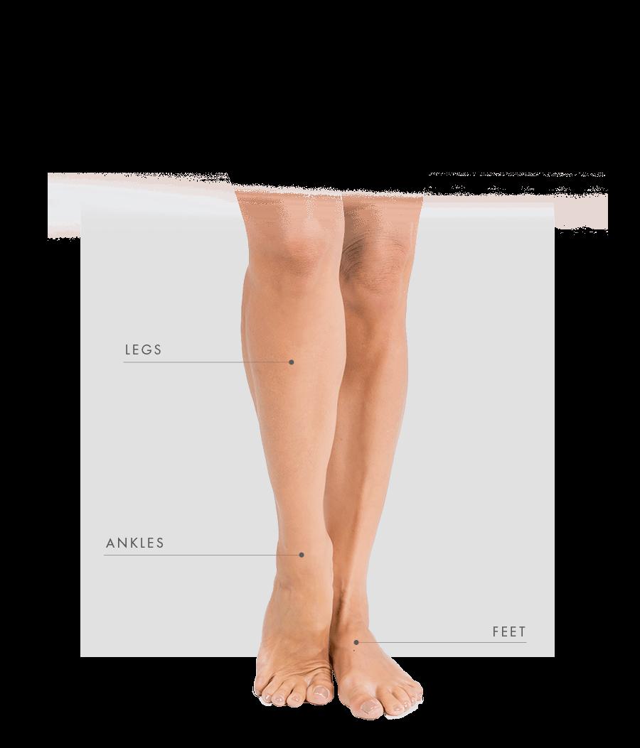 Endovenous Laser Treatable Areas women