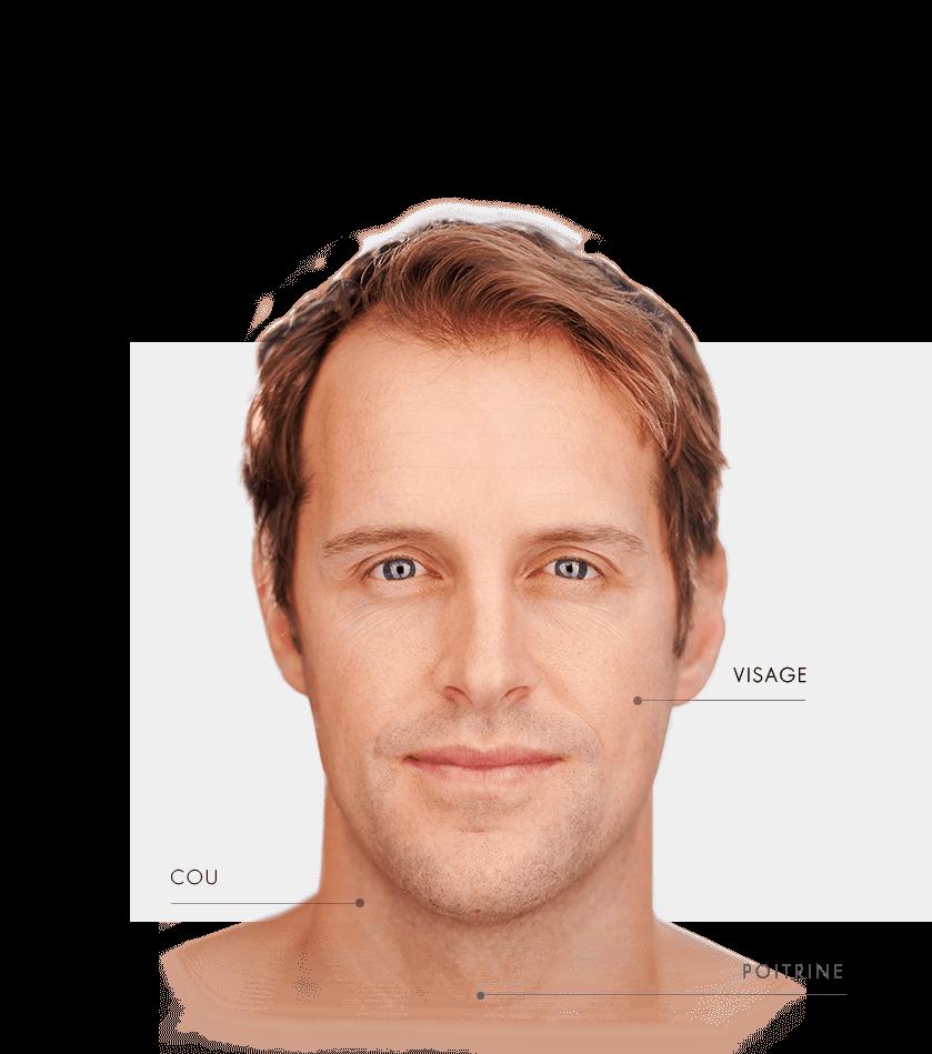 Zones traitables detatouage homme visage
