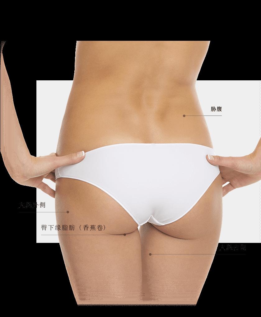 Coolsculpting zones fesses femme