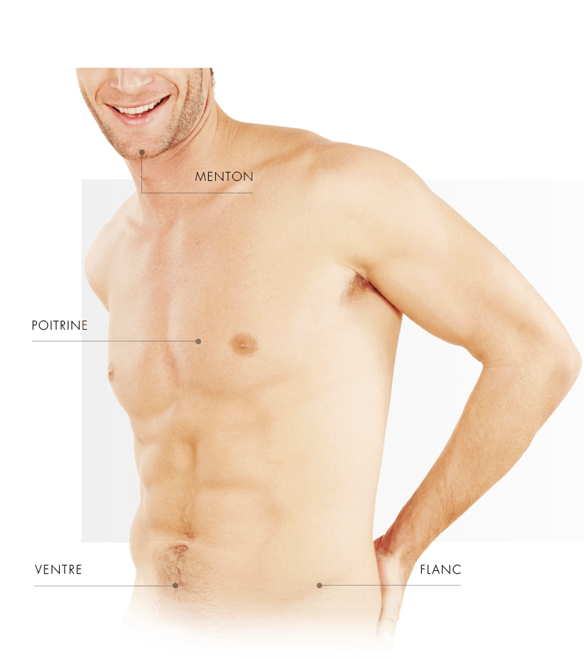 coolsulpting homme torse