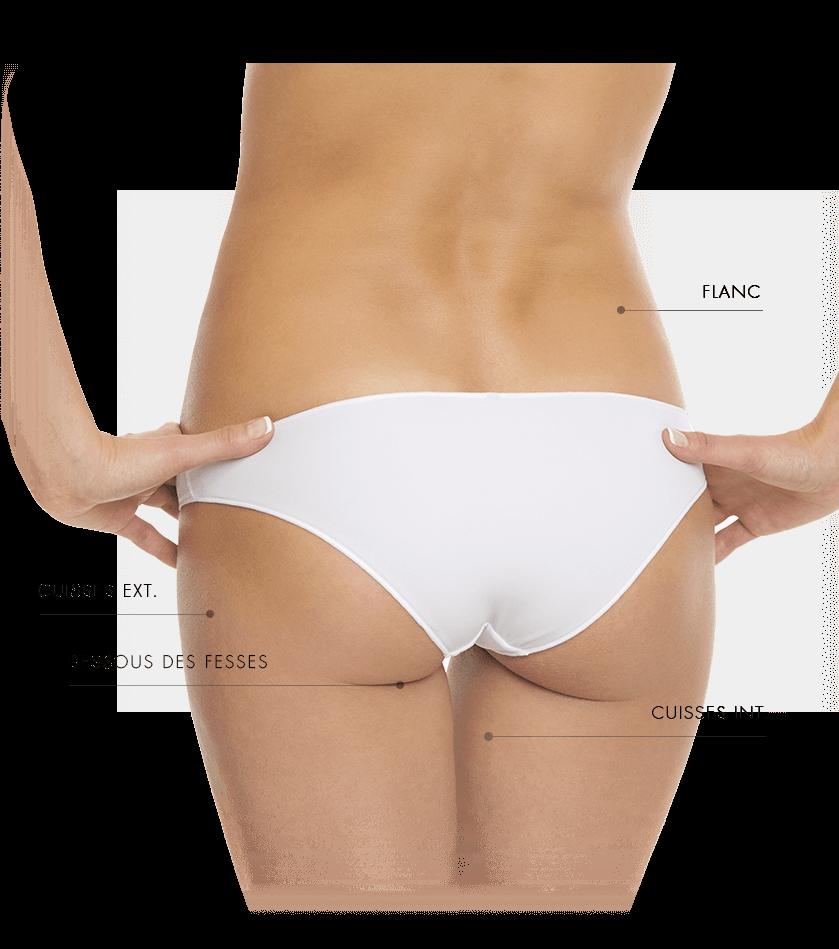 dermapure-coolsculpting zone traites femme