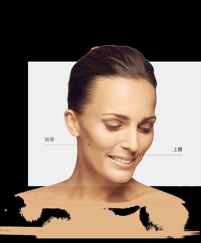 epilation_zones_visage_femme
