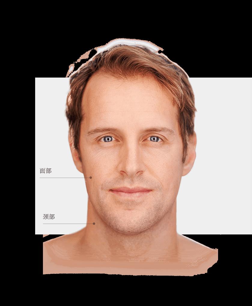 epilation_zones_visage_homme