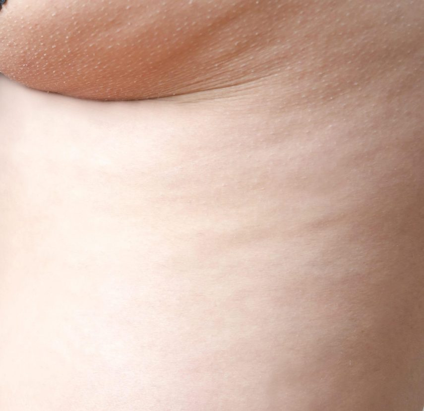 stade 2 cellulite