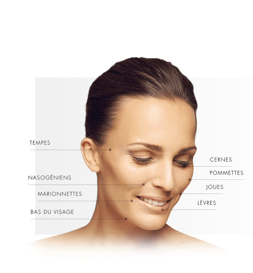 injections volumisante femme