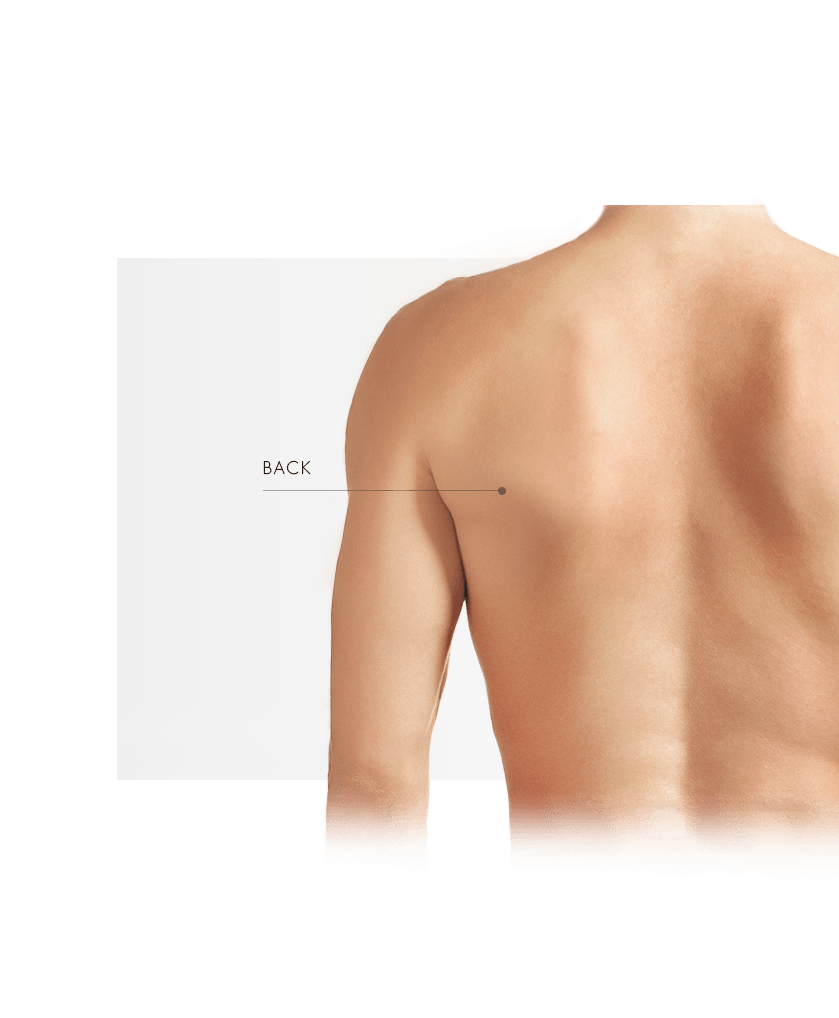 Treatment Areas Vascular Lasers men back