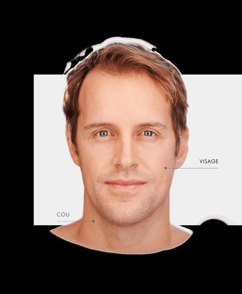 lasers fractionne visage homme