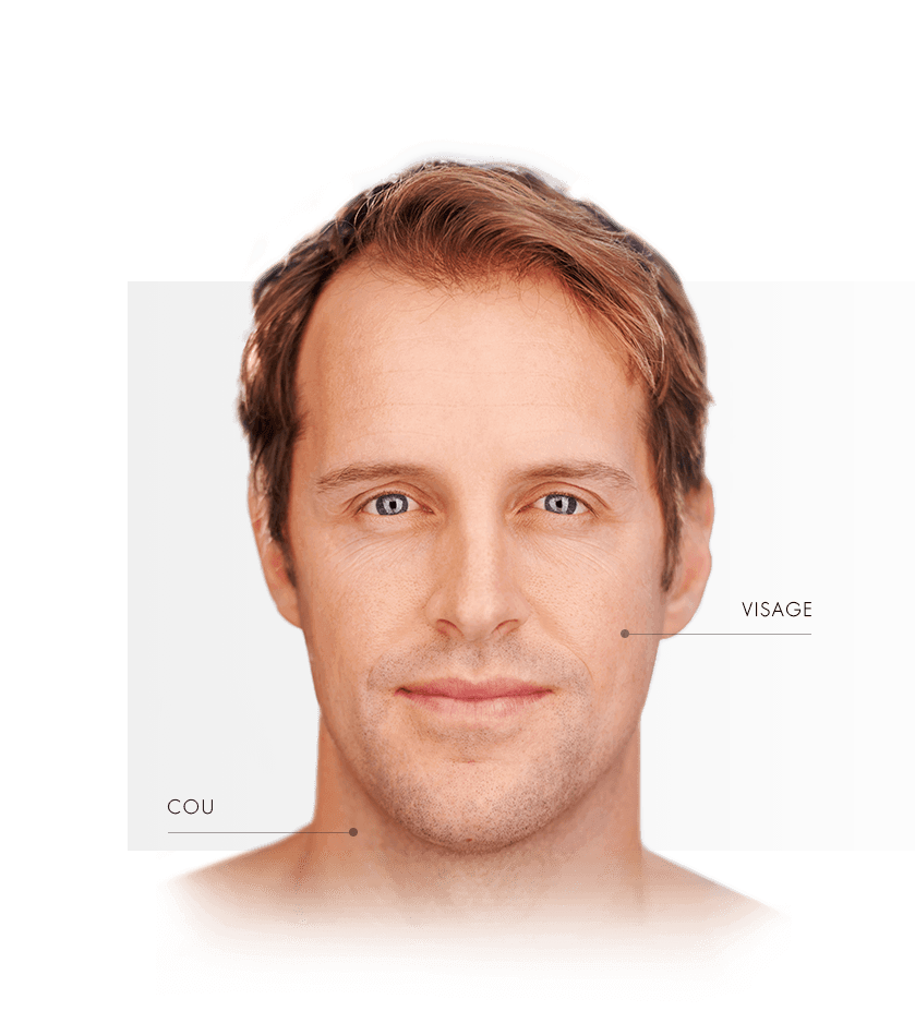 peeling-gycolique homme zone visage