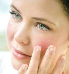 Femme à la peau sensbile avec une couperose