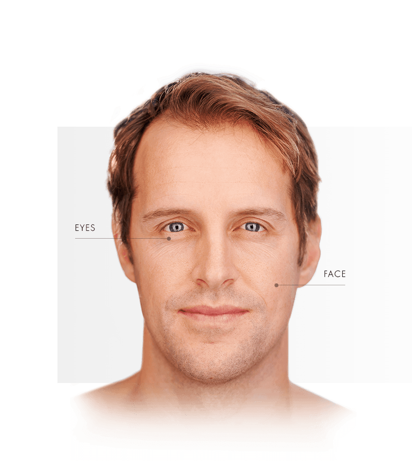 Thermage treated areas men