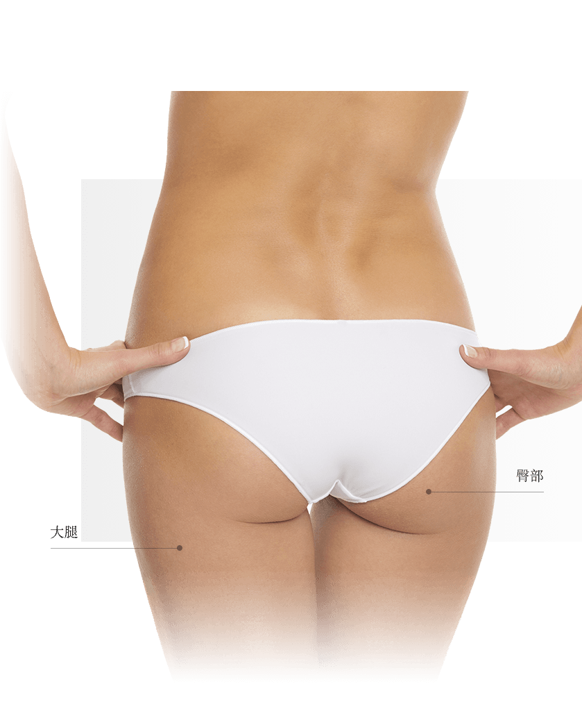 Thermage zones fesses femme