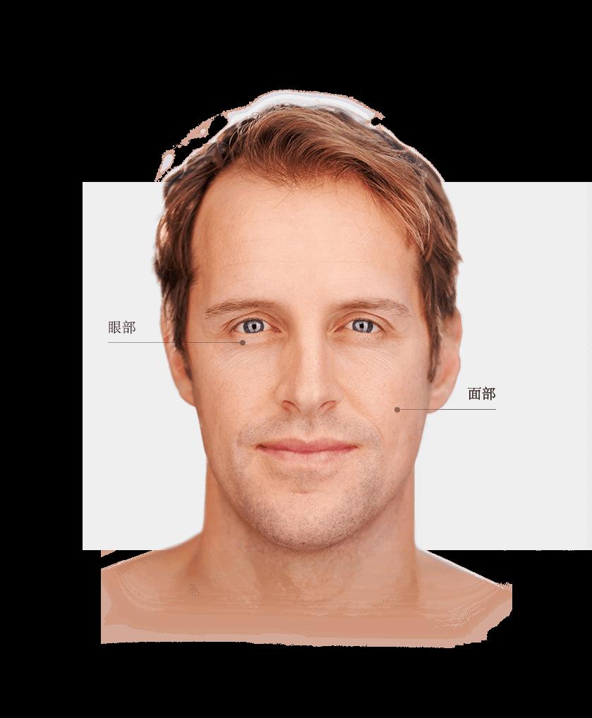 Thermage zones du visage homme