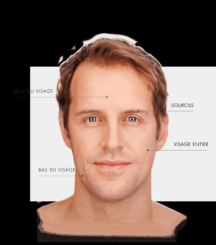 ulthera homme zone visage