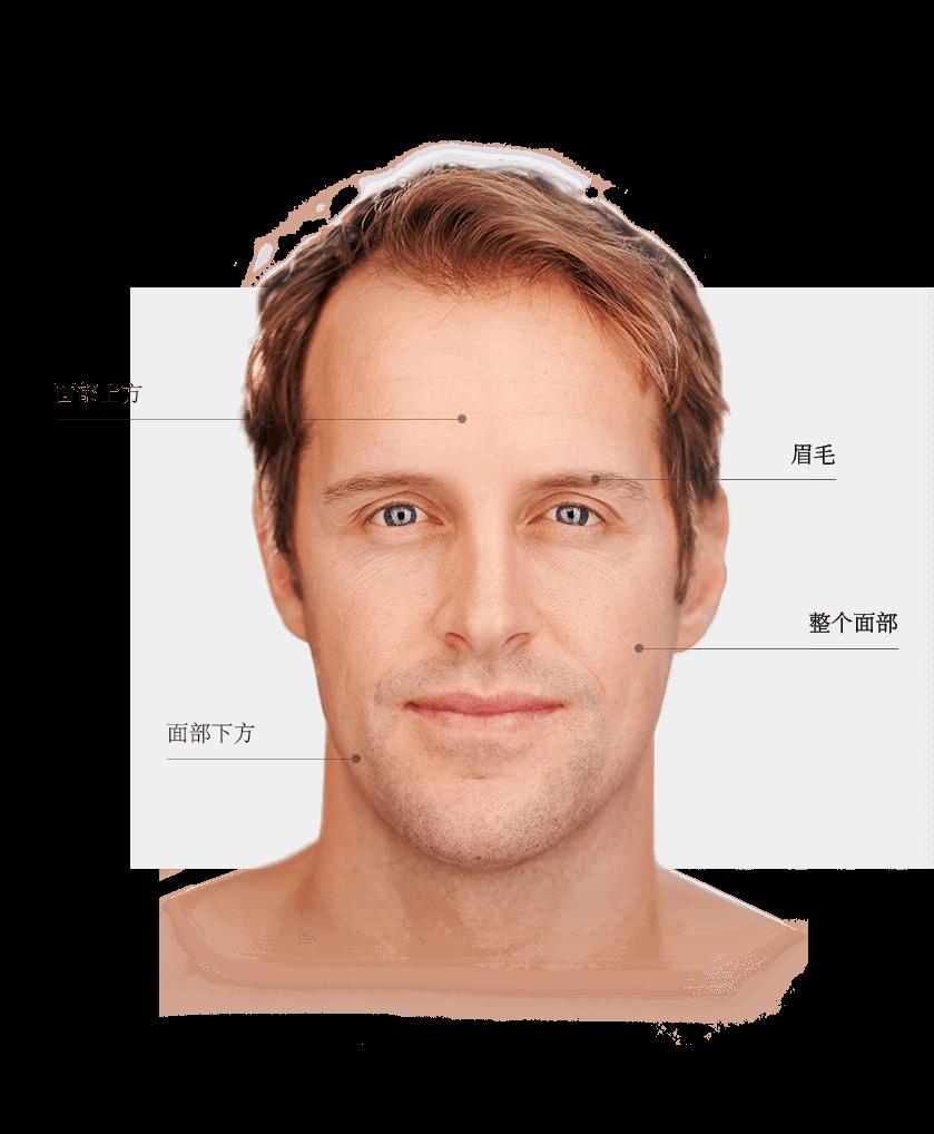 ulthera_zones_visage_homme