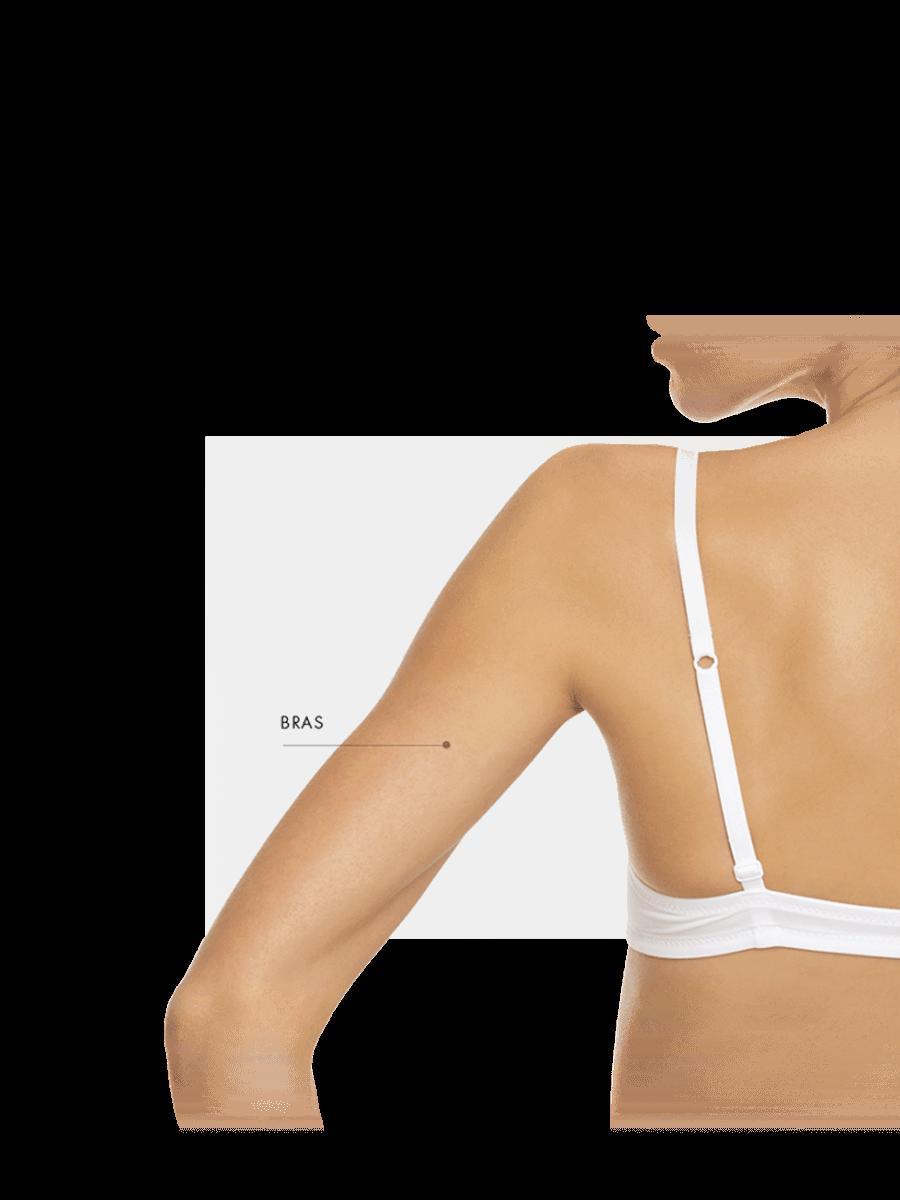 Zones traitables microneedling femme bras