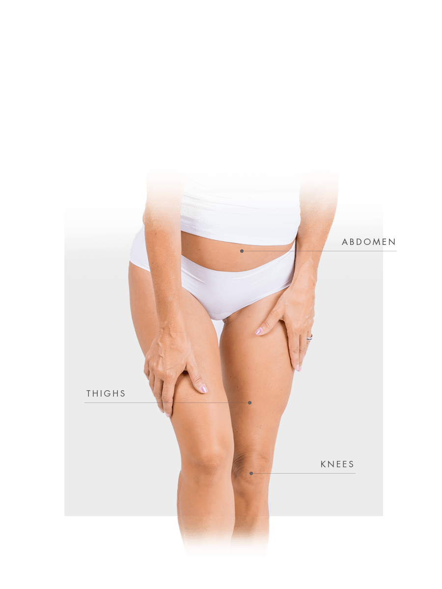 Microneedling for woman for abdomen, thighs and knees