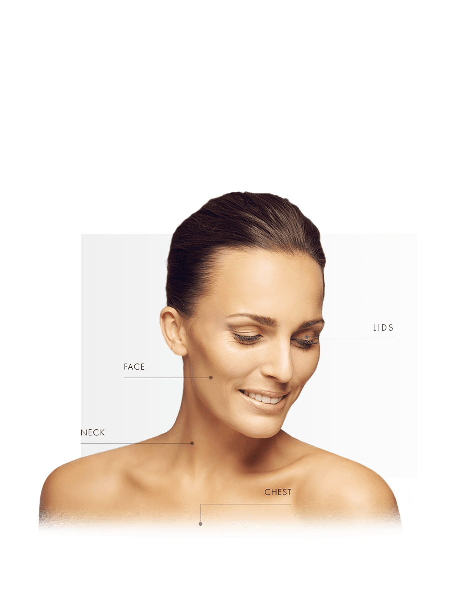 Microneedling for woman for face, lids, neck and chest