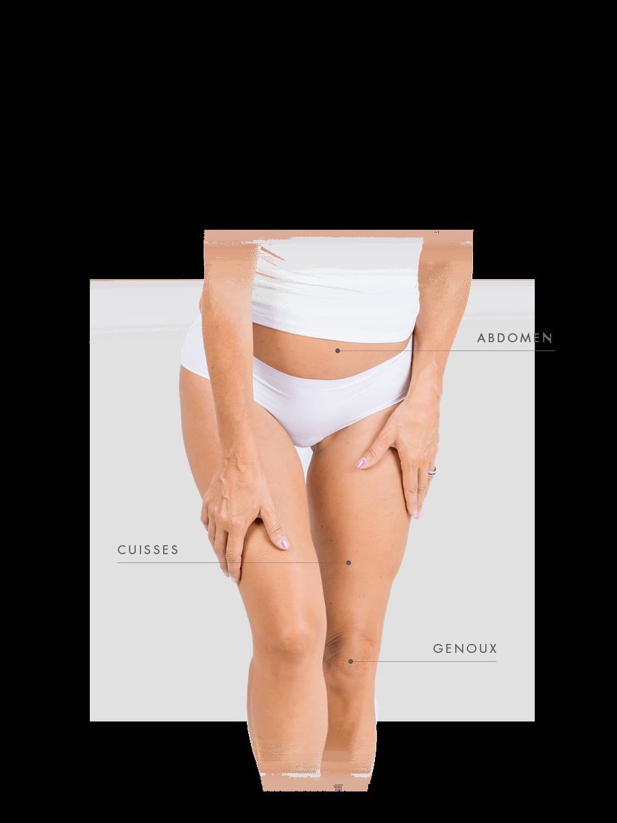 Zones traitables microneedling femme abdomen, cuisses et genoux