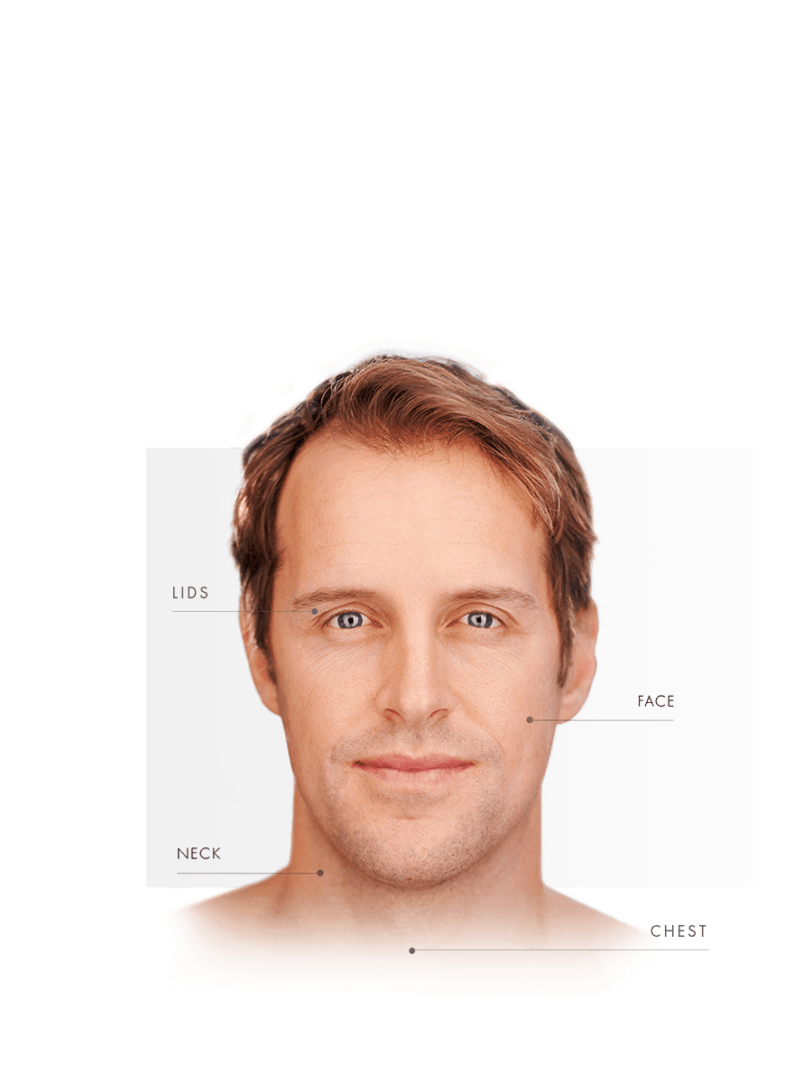 Microneedling for men for lids, face, neck and chest