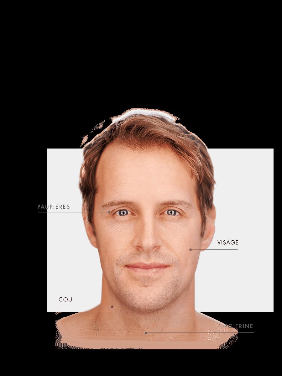 Zones traitables microneedling homme pour les paupières, cou, visage, poitrine