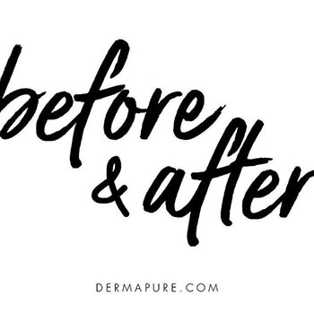 Before and after with Dermapure
