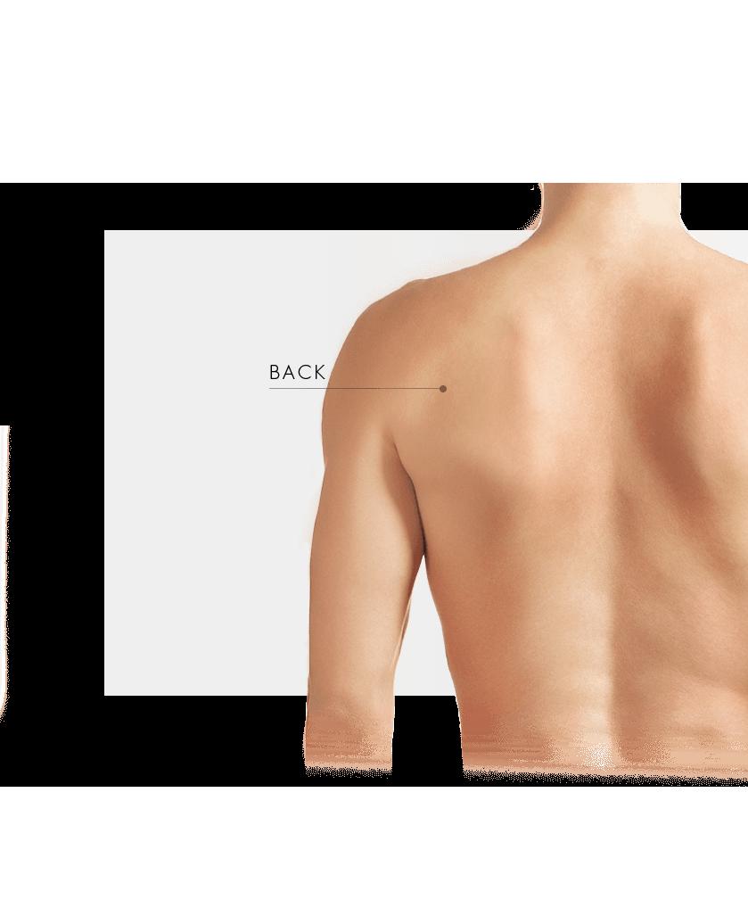 Bela treatment on the back