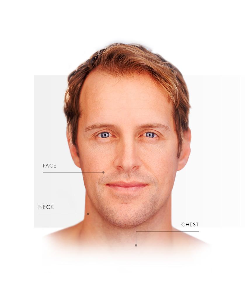microlaserpeel_homme_face_EN