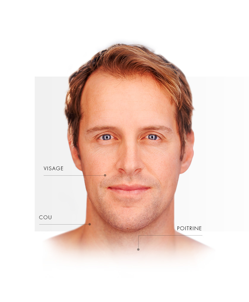 microlaserpeel_homme_face_FR
